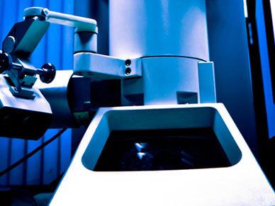 显微镜检查